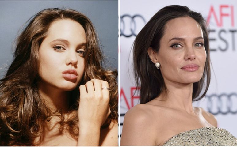 Анджелина Джоли фото до и после пластики подбородка