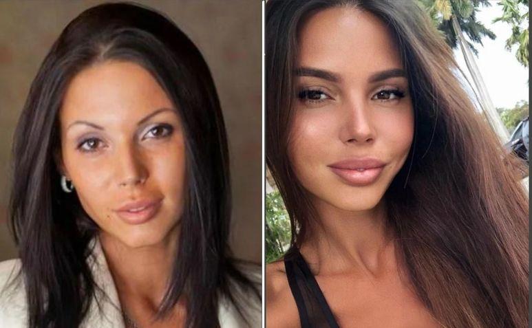 Оксана Самойлова фото до и после пластики